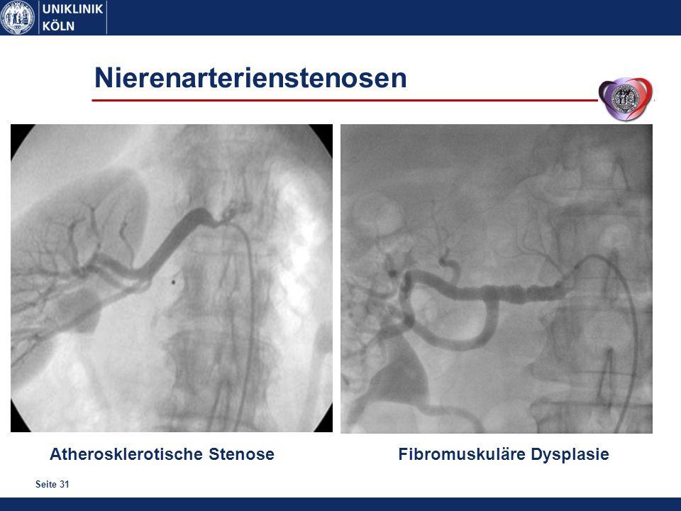 Seite 31 Nierenarterienstenosen Atherosklerotische StenoseFibromuskuläre Dysplasie
