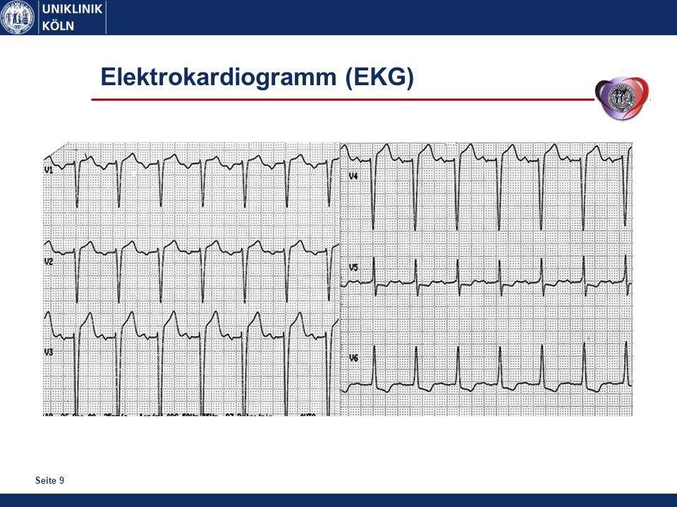 Seite 9 Elektrokardiogramm (EKG)
