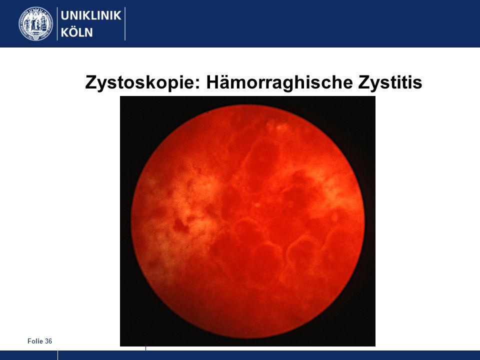 Folie 36 Zystoskopie: Hämorraghische Zystitis