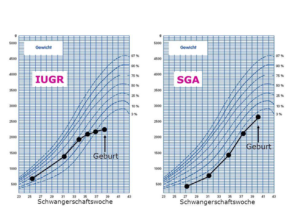 Schwangerschaftswoche SGA Geburt IUGR Schwangerschaftswoche Geburt