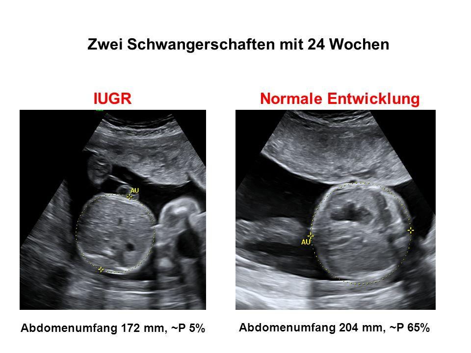 Zwei Schwangerschaften mit 24 Wochen Abdomenumfang 172 mm, ~P 5% Abdomenumfang 204 mm, ~P 65% IUGRNormale Entwicklung