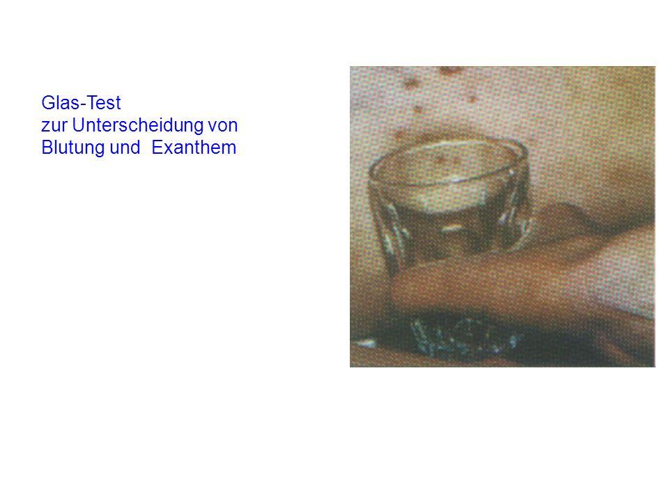 Glas-Test zur Unterscheidung von Blutung und Exanthem