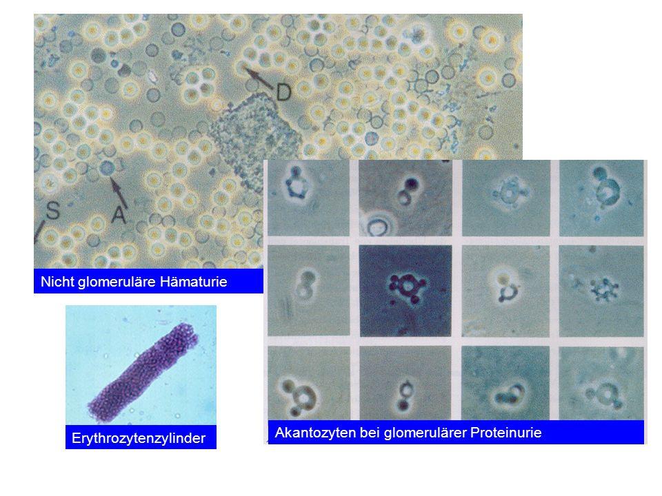 Nicht glomeruläre Hämaturie Akantozyten bei glomerulärer Proteinurie Erythrozytenzylinder