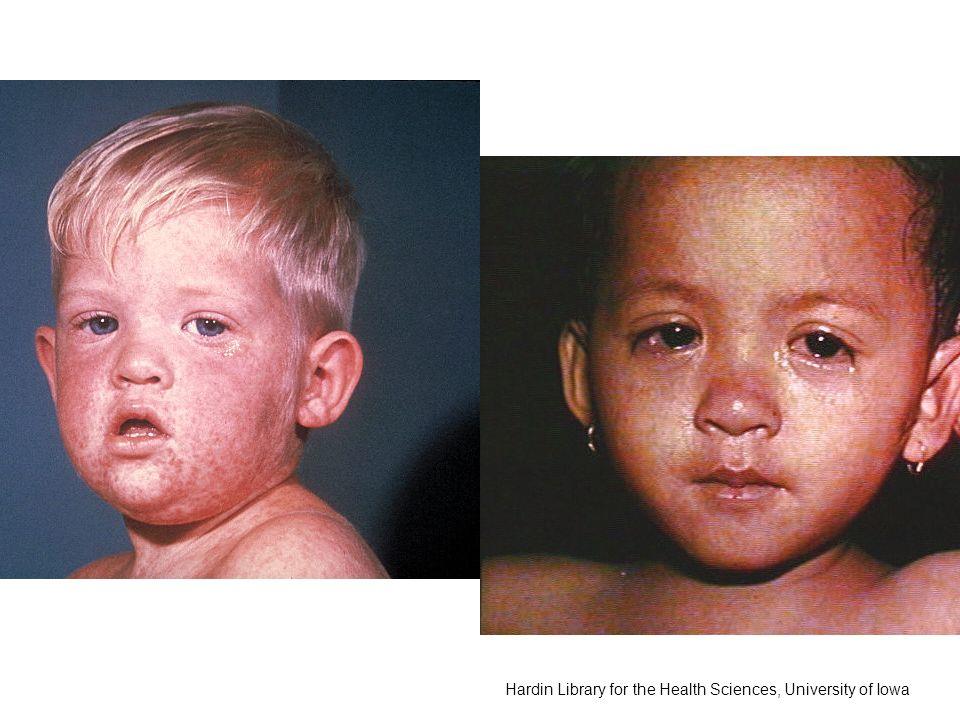 Infektionserkrankungen Infektionserkrankungen mit Exanthem Weitere sogenannte Kinderkrankheiten Impfungen