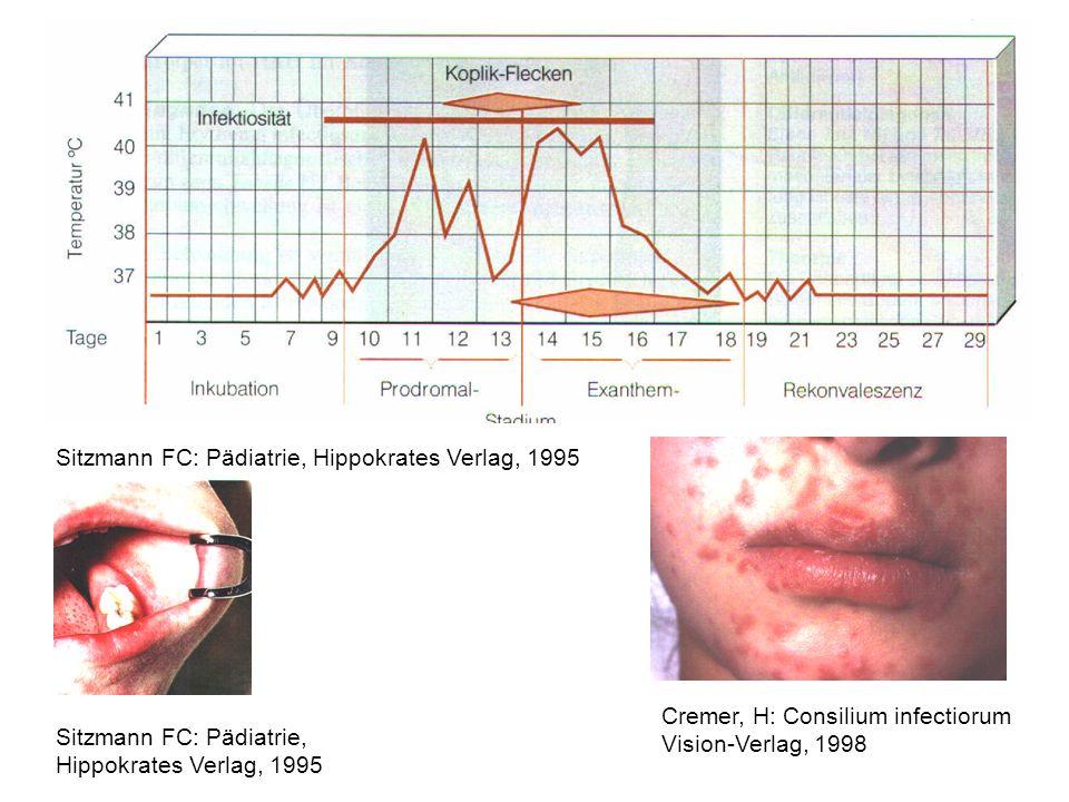 Konnatale Varizellen: Ulcerationen und Narben der Haut der Gliedmaßen, Mangelgeburt, zerebrale Schädigung Schneeweiss B, Kreth H: Päd.