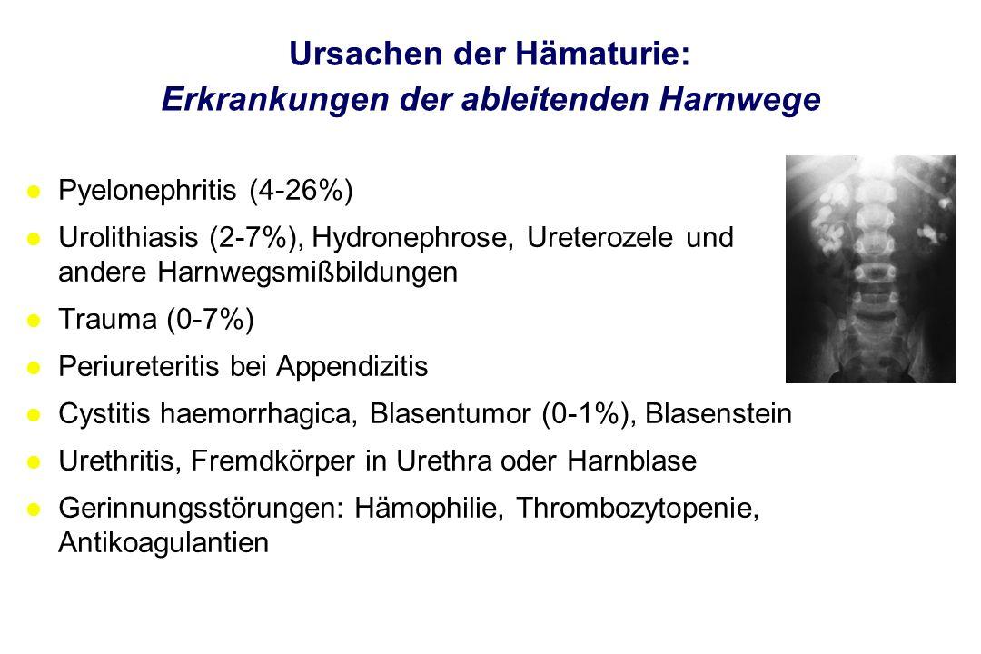 Ursachen der Hämaturie: Erkrankungen der ableitenden Harnwege l Pyelonephritis (4-26%) l Urolithiasis (2-7%), Hydronephrose, Ureterozele und andere Ha