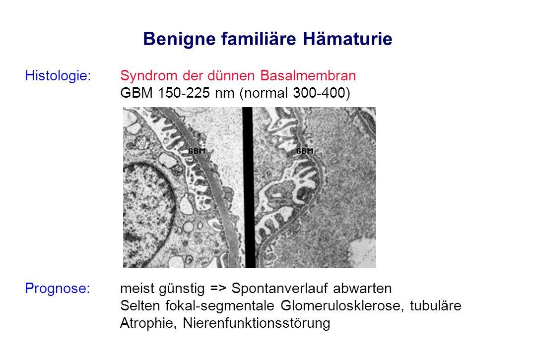 Benigne familiäre Hämaturie Histologie: Syndrom der dünnen Basalmembran GBM 150-225 nm (normal 300-400) Prognose:meist günstig => Spontanverlauf abwar