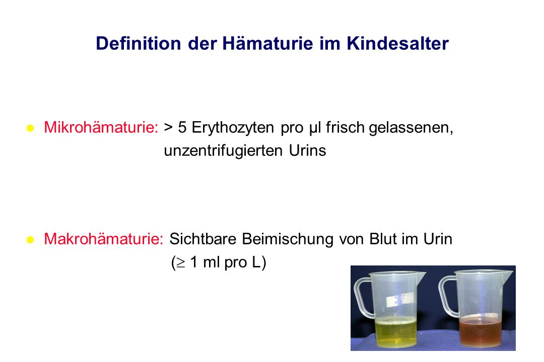 Definition der Hämaturie im Kindesalter l Mikrohämaturie: > 5 Erythozyten pro µl frisch gelassenen, unzentrifugierten Urins l Makrohämaturie: Sichtbar