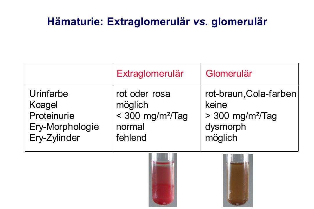 Proteinurie Definition: > 100 mg/m²/Tag Eiweißausscheidung im Urin Kleine Proteinurie: < 1g/m²/Tag Große Proteinurie: > 1g/m²/Tag Selektive Proteinurie: nur Albuminurie Unselektive Proteinurie: auch hochmolekulare Eiweiße