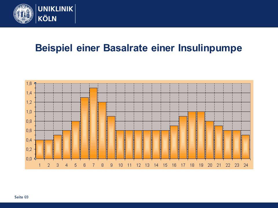 Seite 69 Beispiel einer Basalrate einer Insulinpumpe