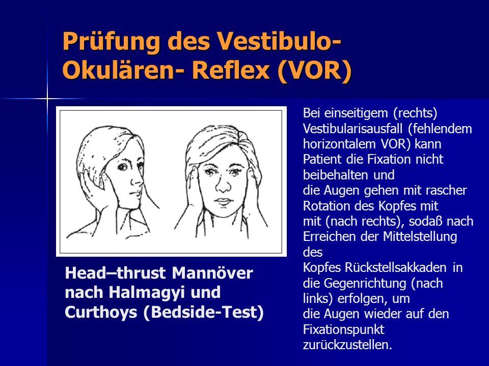 Prüfung des Vestibulo- Okulären- Reflex (VOR) Head–thrust Mannöver nach Halmagyi und Curthoys (Bedside-Test) Bei einseitigem (rechts) Vestibularisausf