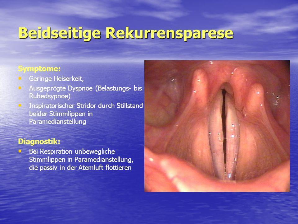 Beidseitige Rekurrensparese Symptome: Geringe Heiserkeit, Ausgeprögte Dyspnoe (Belastungs- bis Ruhedsypnoe) Inspiratorischer Stridor durch Stillstand