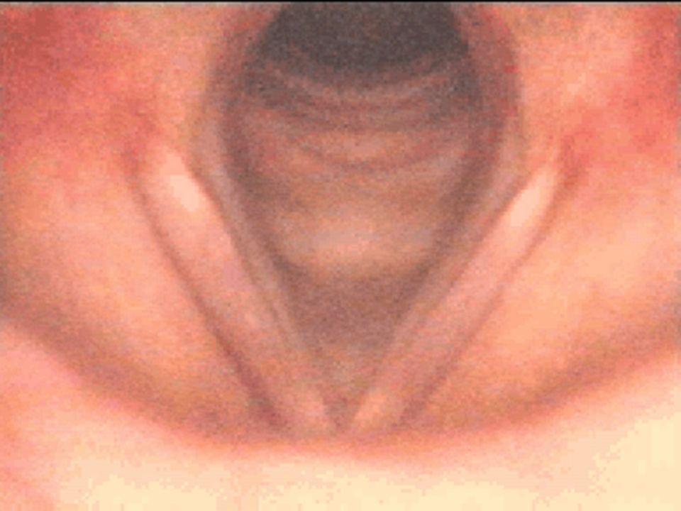 Beidseitige Rekurrensparese Therapie: Tracheotomie und Sprechkanüle wegen der Atemnot oft erforderlich Tracheotomie und Sprechkanüle wegen der Atemnot oft erforderlich Bei Dauer > 9 Mon.