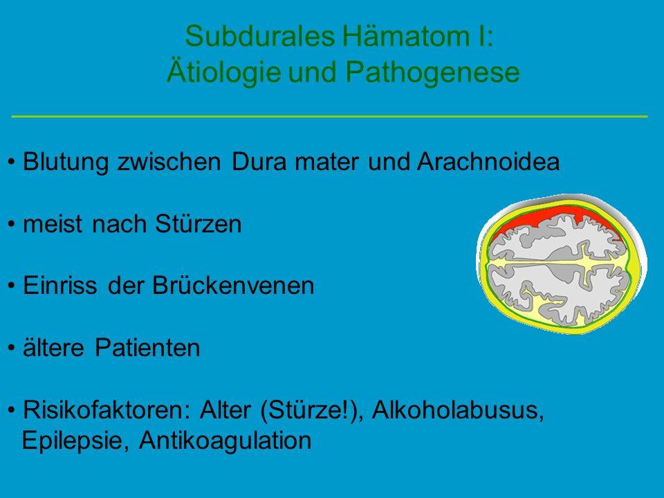 Subdurales Hämatom I: Ätiologie und Pathogenese Blutung zwischen Dura mater und Arachnoidea meist nach Stürzen Einriss der Brückenvenen ältere Patient