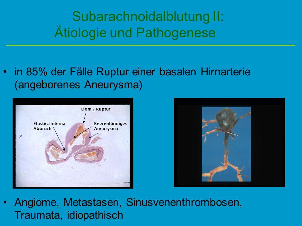 Subarachnoidalblutung II: Ätiologie und Pathogenese in 85% der Fälle Ruptur einer basalen Hirnarterie (angeborenes Aneurysma) Angiome, Metastasen, Sin