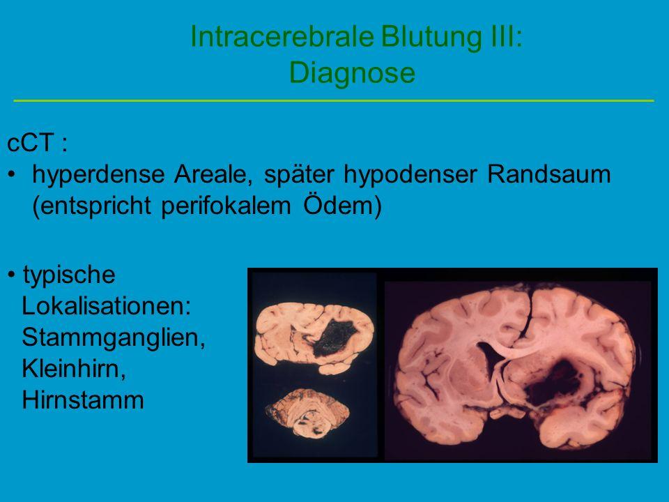 Intracerebrale Blutung III: Diagnose cCT : hyperdense Areale, später hypodenser Randsaum (entspricht perifokalem Ödem) typische Lokalisationen: Stammg
