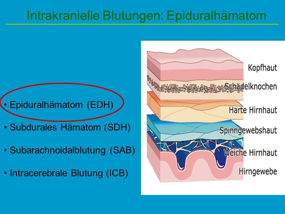 Intrakranielle Blutungen: Epiduralhämatom Epiduralhämatom (EDH) Subdurales Hämatom (SDH) Subarachnoidalblutung (SAB) Intracerebrale Blutung (ICB)