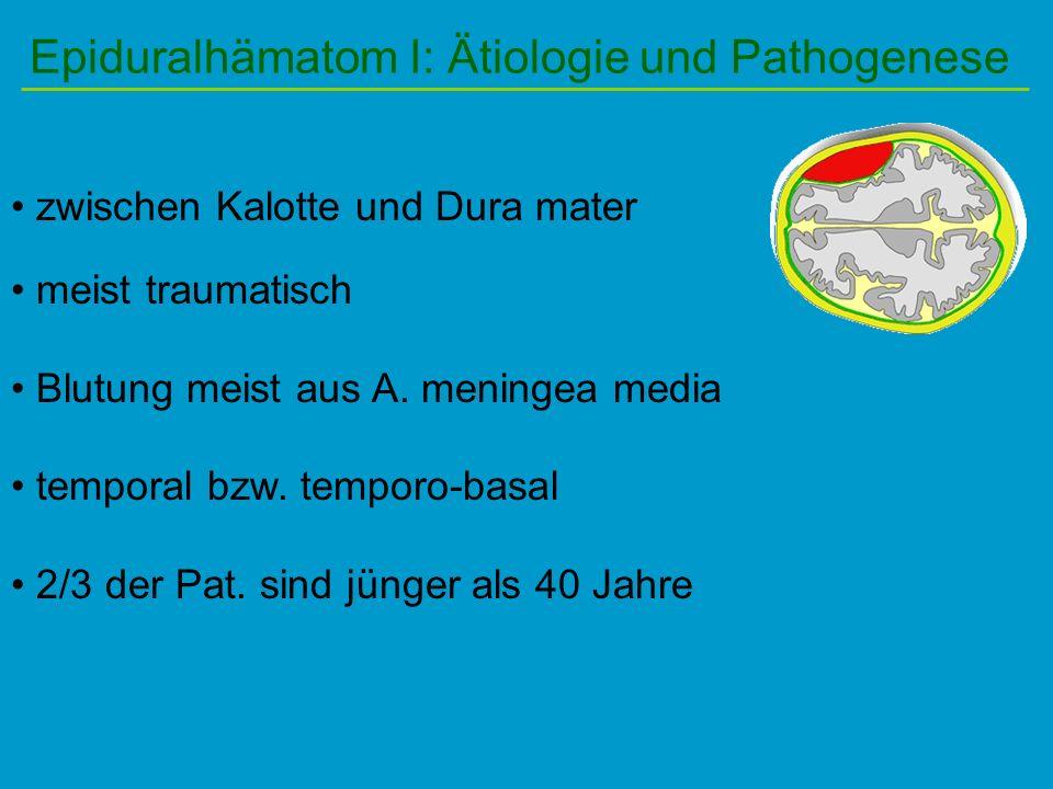 Epiduralhämatom I: Ätiologie und Pathogenese zwischen Kalotte und Dura mater meist traumatisch Blutung meist aus A. meningea media temporal bzw. tempo