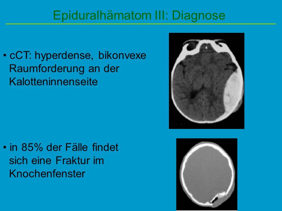 Epiduralhämatom III: Diagnose cCT: hyperdense, bikonvexe Raumforderung an der Kalotteninnenseite in 85% der Fälle findet sich eine Fraktur im Knochenf