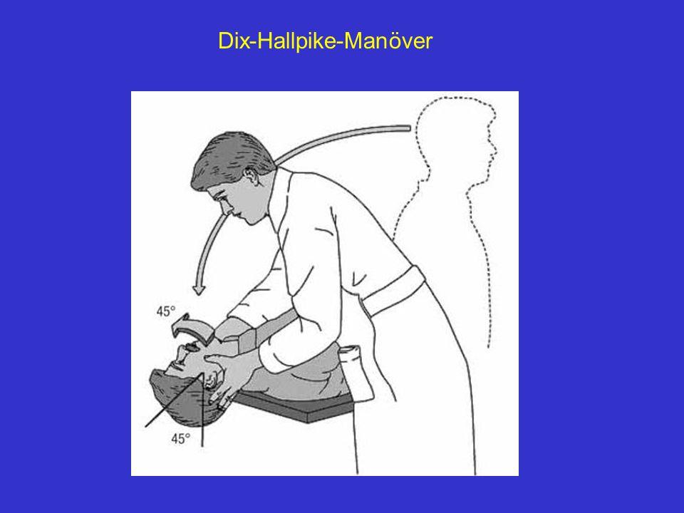 Dix-Hallpike-Manöver