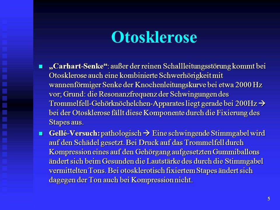 5 Otosklerose Carhart-Senke: außer der reinen Schallleitungsstörung kommt bei Otosklerose auch eine kombinierte Schwerhörigkeit mit wannenförmiger Sen