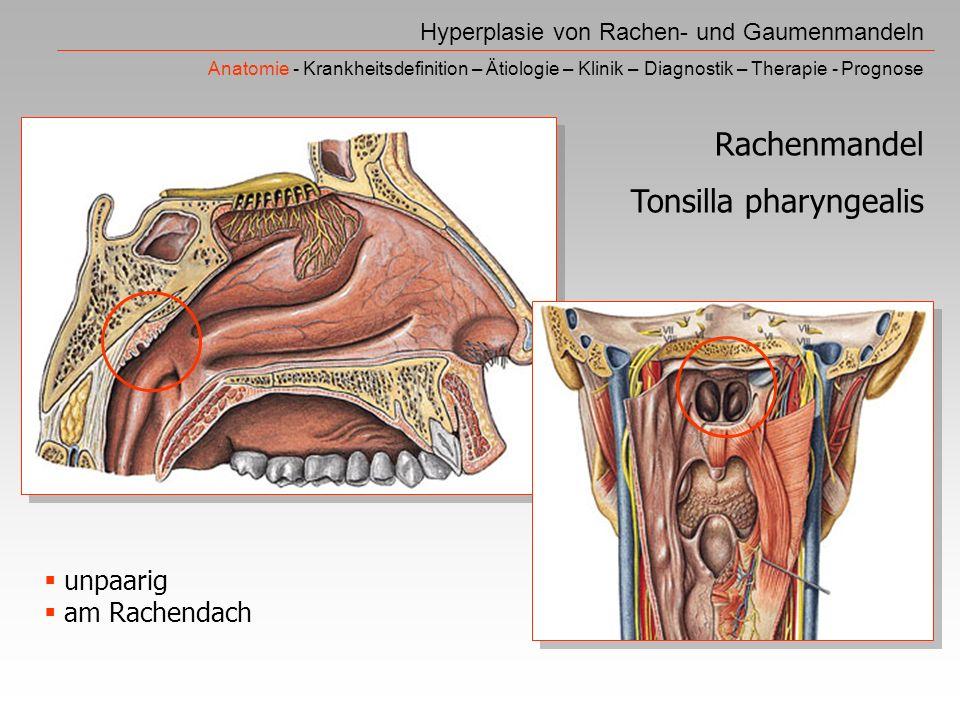 Hyperplasie von Rachen- und Gaumenmandeln Anatomie - Krankheitsdefinition – Ätiologie – Klinik – Diagnostik – Therapie - Prognose Rachenmandel Tonsilla pharyngealis unpaarig am Rachendach