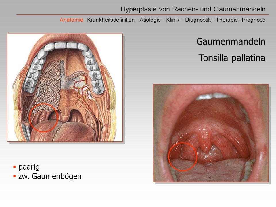 Hyperplasie von Rachen- und Gaumenmandeln Anatomie - Krankheitsdefinition – Ätiologie – Klinik – Diagnostik – Therapie - Prognose Gaumenmandeln Tonsilla pallatina paarig zw.