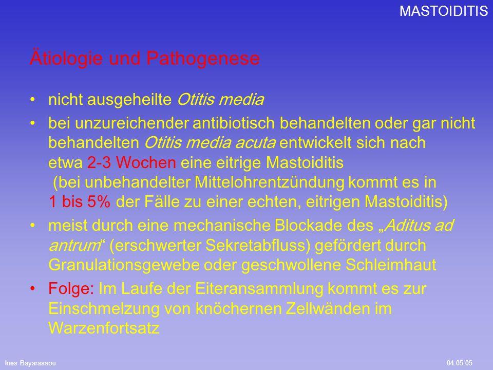 Ines Bayarassou04.05.05 MASTOIDITIS Ätiologie und Pathogenese nicht ausgeheilte Otitis media bei unzureichender antibiotisch behandelten oder gar nich