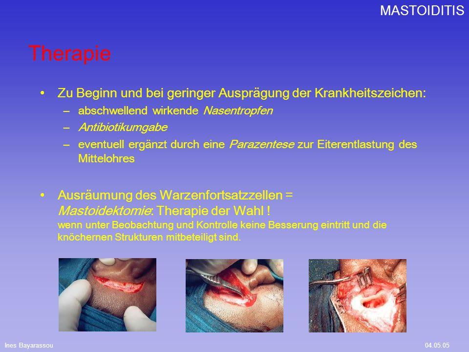 Ines Bayarassou04.05.05 MASTOIDITIS Therapie Zu Beginn und bei geringer Ausprägung der Krankheitszeichen: –abschwellend wirkende Nasentropfen –Antibio