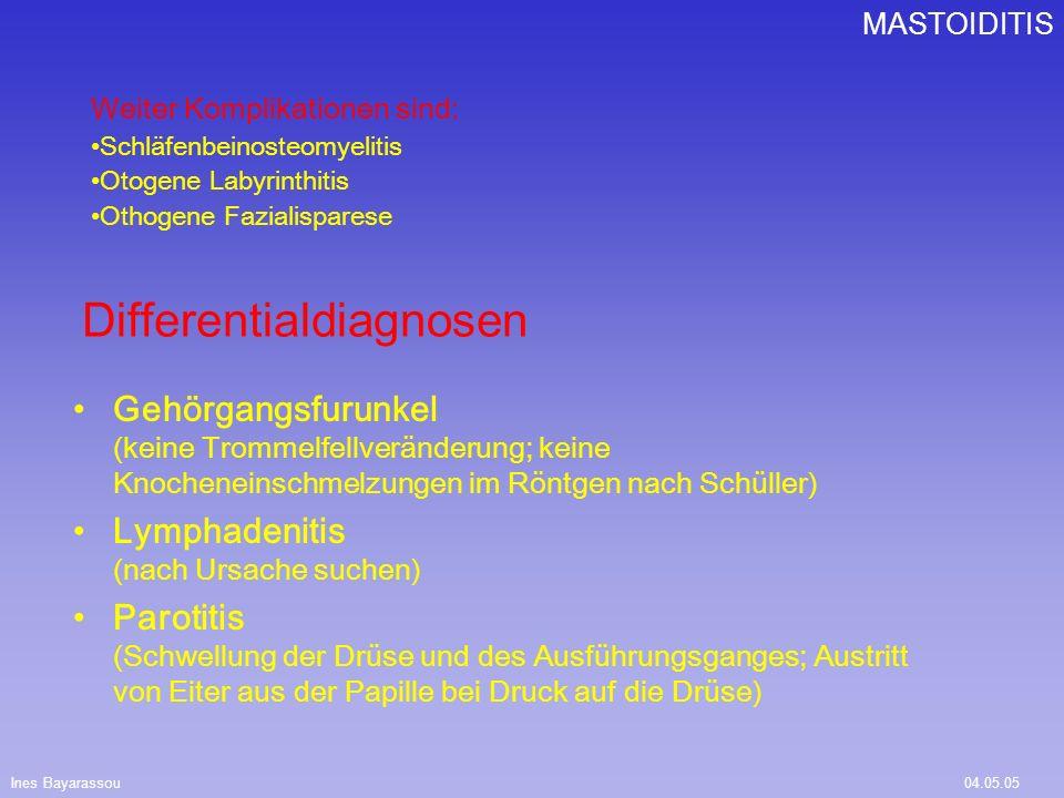 Ines Bayarassou04.05.05 MASTOIDITIS Quellen.: Duale Reihe HNO-Heilkunde; Psychrembel, Internet