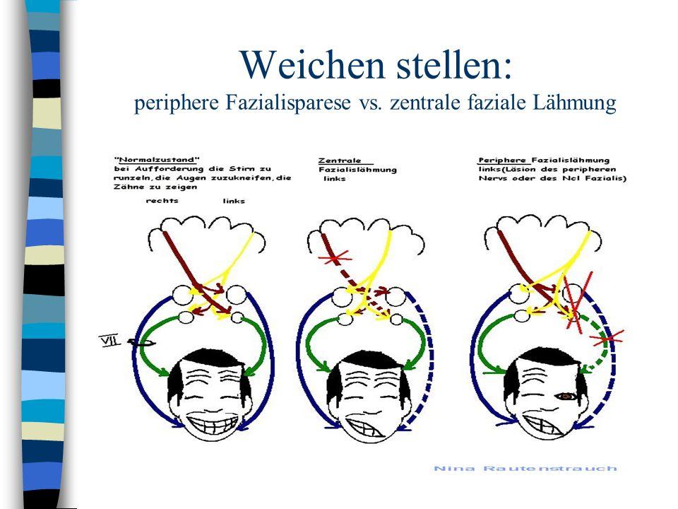 Weichen stellen: periphere Fazialisparese vs. zentrale faziale Lähmung