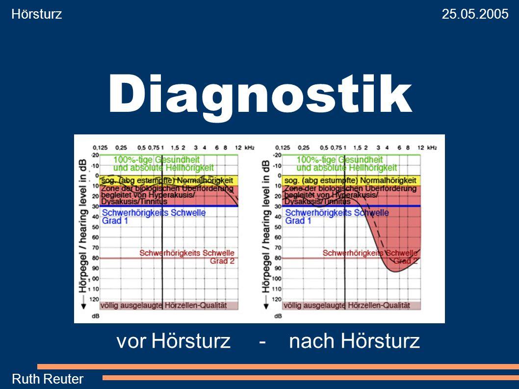 Hörsturz 25.05.2005 Ruth Reuter Diagnostik vor Hörsturz - nach Hörsturz