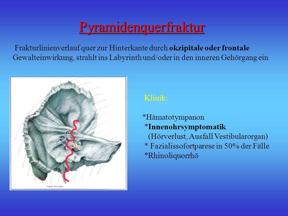 Diagnostik Diagnostik *Anamnese *Klinik *Otoskopie *Röntgen *CCT Hämatotympanon