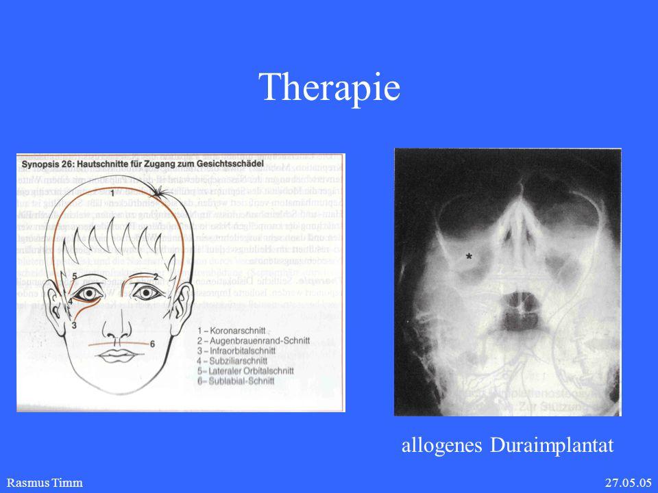 27.05.05Rasmus Timm Therapie operative Therapie: Infraorbitalschnitt oder Subziliarschnitt Reposition der Frakturfragmente und des in die Kieferhöhle