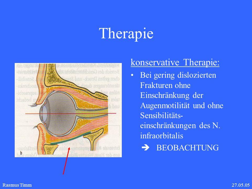 27.05.05Rasmus Timm Therapie allogenes Duraimplantat
