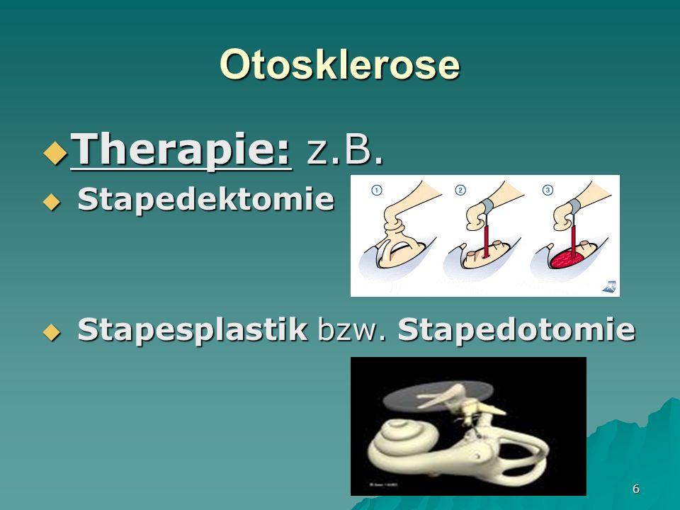 7 Otosklerose Prognose: Prognose: Je jünger desto schlechter Je jünger desto schlechter Unbehandelt Taubheit Unbehandelt Taubheit Operation: über 90% Wiederherstellung des normalen Hörvermögens.