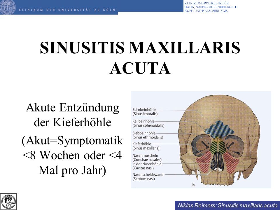 Niklas Reimers: Sinusitis maxillaris acuta KLINIK UND POLIKLINIK FÜR HALS-, NASEN-, OHRENHEILKUNDE KOPF- UND HALSCHIRURGIE SINUSITIS MAXILLARIS ACUTA