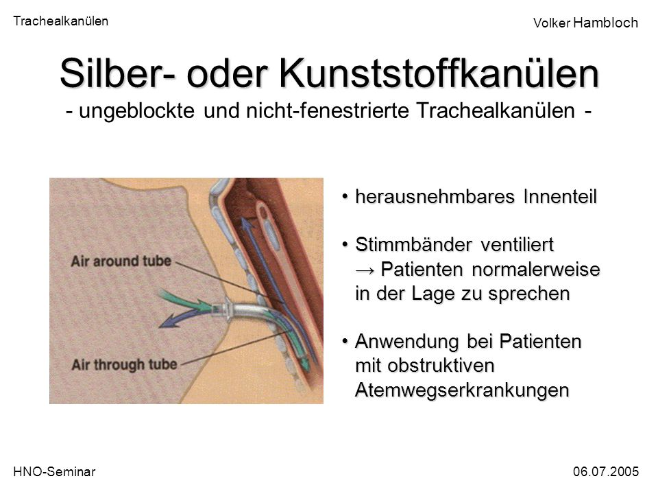 Trachealkanülen 06.07.2005HNO-Seminar Volker Hambloch Silber- oder Kunststoffkanülen Silber- oder Kunststoffkanülen - ungeblockte und nicht-fenestrier