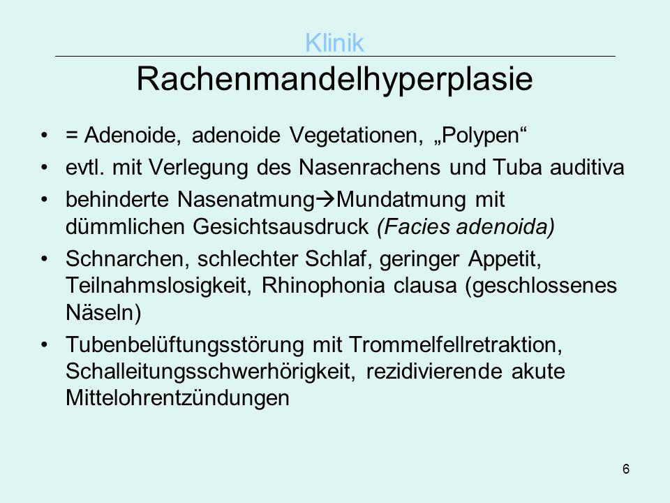 6 Klinik Rachenmandelhyperplasie = Adenoide, adenoide Vegetationen, Polypen evtl. mit Verlegung des Nasenrachens und Tuba auditiva behinderte Nasenatm