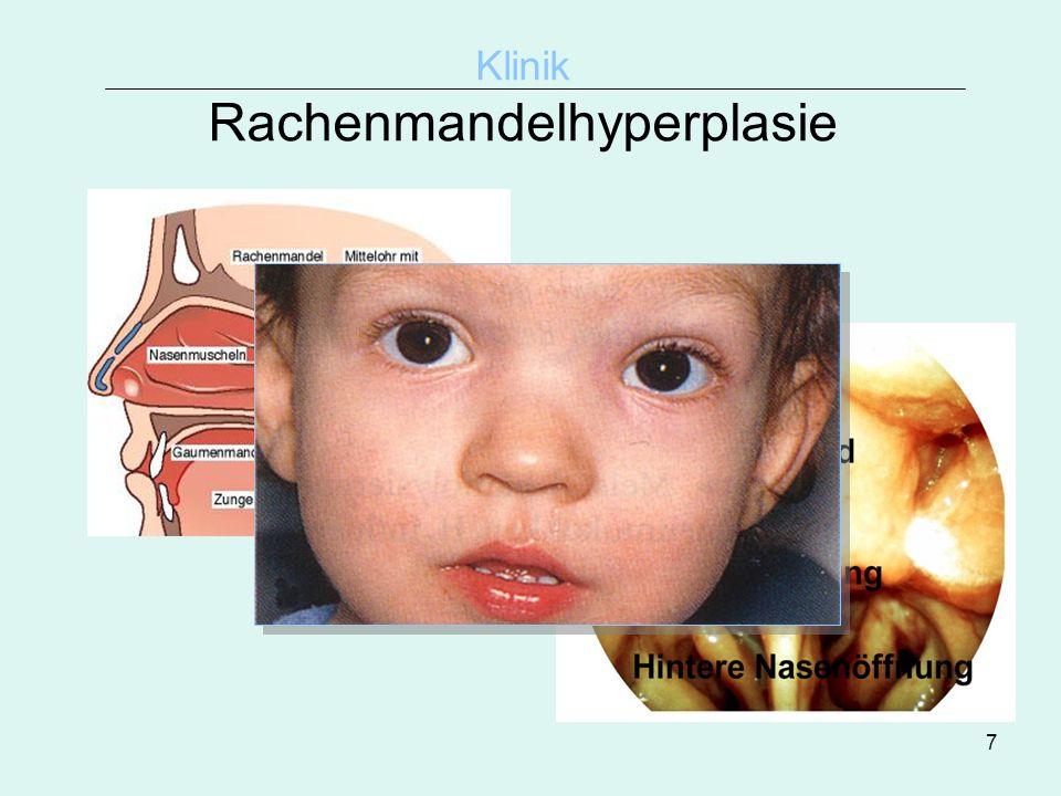 7 Klinik Rachenmandelhyperplasie