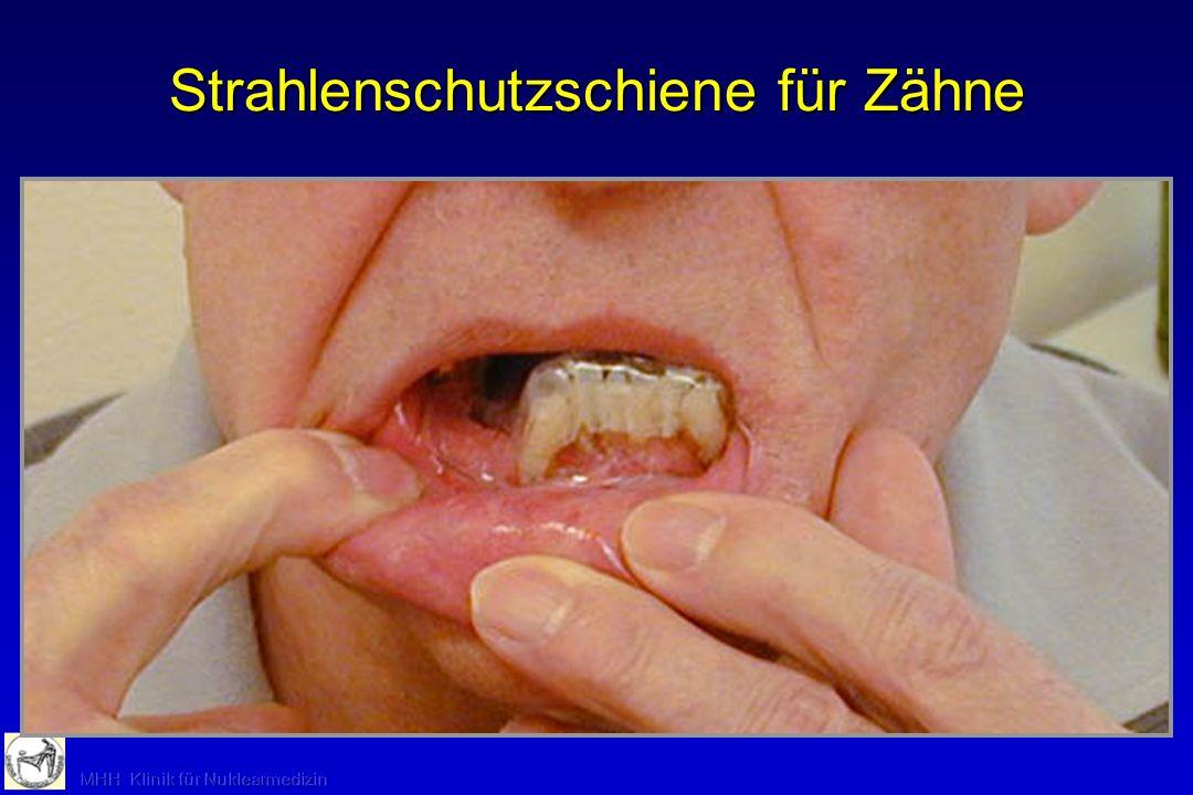 Strahlenschutzschiene für Zähne