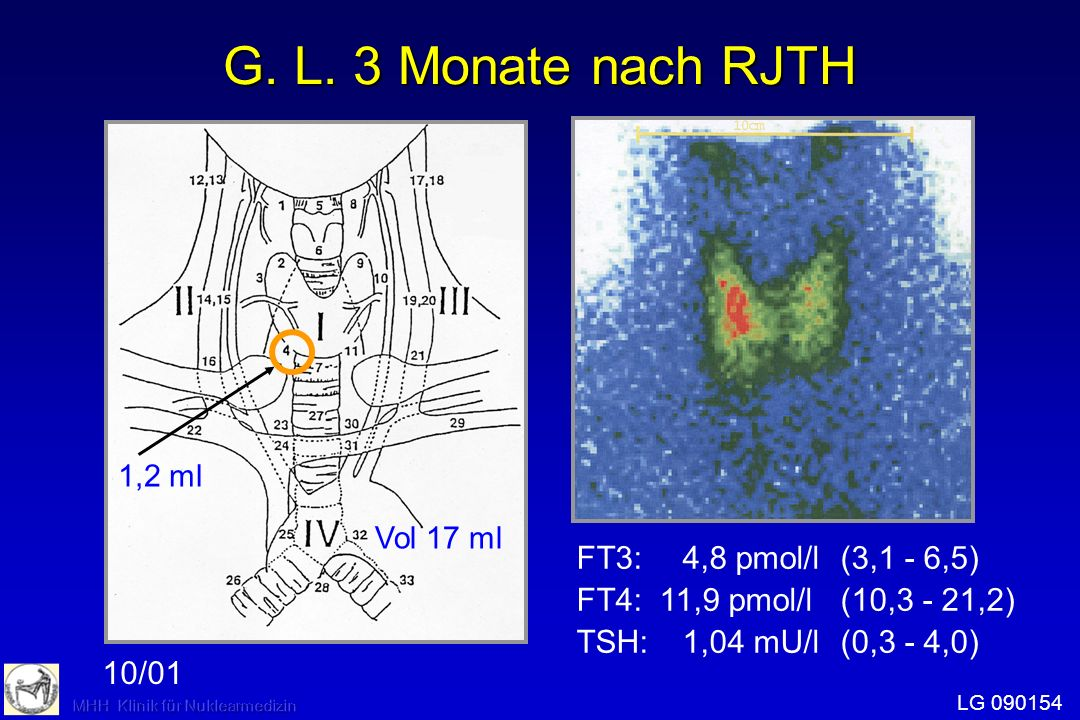 1,2 ml Vol 17 ml FT3: 4,8 pmol/l(3,1 - 6,5) FT4: 11,9 pmol/l(10,3 - 21,2) TSH:1,04 mU/l(0,3 - 4,0) LG 090154 10/01 G. L. 3 Monate nach RJTH