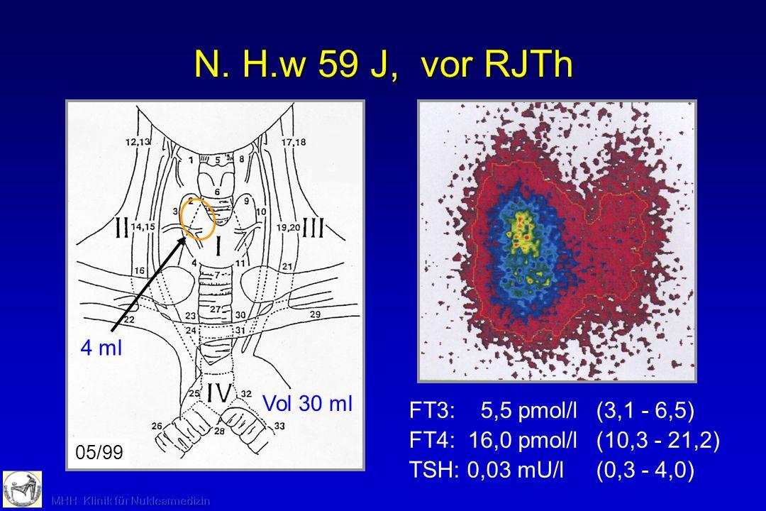 N. H.w 59 J, vor RJTh Vol 30 ml FT3: 5,5 pmol/l(3,1 - 6,5) FT4: 16,0 pmol/l(10,3 - 21,2) TSH: 0,03 mU/l(0,3 - 4,0) 05/99 4 ml