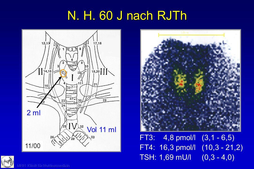 Vol 11 ml 11/00 N. H. 60 J nach RJTh FT3: 4,8 pmol/l(3,1 - 6,5) FT4: 16,3 pmol/l(10,3 - 21,2) TSH: 1,69 mU/l(0,3 - 4,0) 2 ml