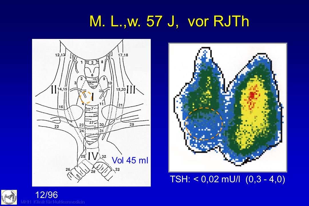 Thyreoidale Autonomie: Nachsorge nach RJTh Unifokale Autonomie:Kontrolle 4 Wochen, 3 Monate, 1-jährige Abstände nach RJTh Multifokale Autonomie und größere Strumen:Substitution (TSH untere Normgrenze), Kontrollen wie oben