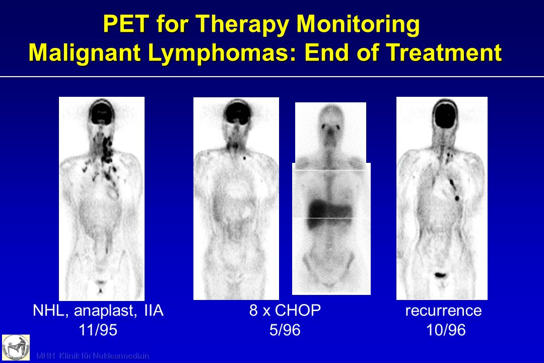 NHL, anaplast, IIA 11/95 8 x CHOP 5/96 recurrence 10/96 PET for Malignant Lymphomas: End of Treatment PET for Therapy Monitoring Malignant Lymphomas: