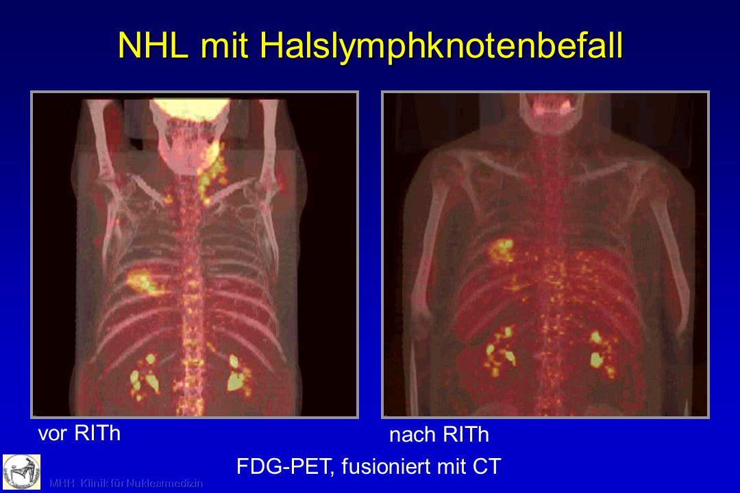 NHL mit Halslymphknotenbefall FDG-PET, fusioniert mit CT vor RITh nach RITh mit 90 Y-Ak (Zevalin ® )