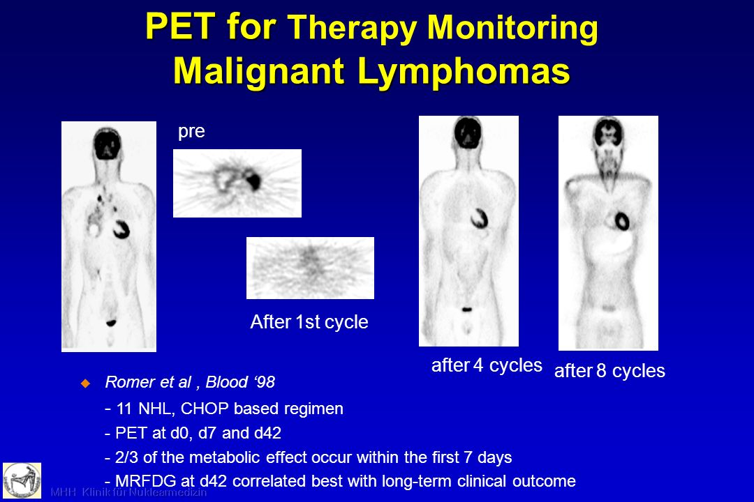 pre After 1st cycle after 4 cycles after 8 cycles PET for Malignant Lymphomas PET for Therapy Monitoring Malignant Lymphomas Romer et al, Blood 98 - 1