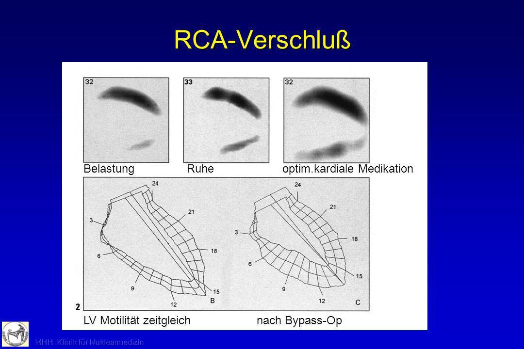 Myokard-Szintigraphie: Indikationen -Verdacht / Ausschluß KHK (Vermeidung Koronarangiographie) -Ergänzung zur Koronarangiographie (funktionelle Signifikanz von Koronarstenosen, Mikrozirkulation, Koronarkollateralen, Vitalität von Myokard nach Infarkt) -Nichtinvasive Therapie- und Verlaufskontrollen