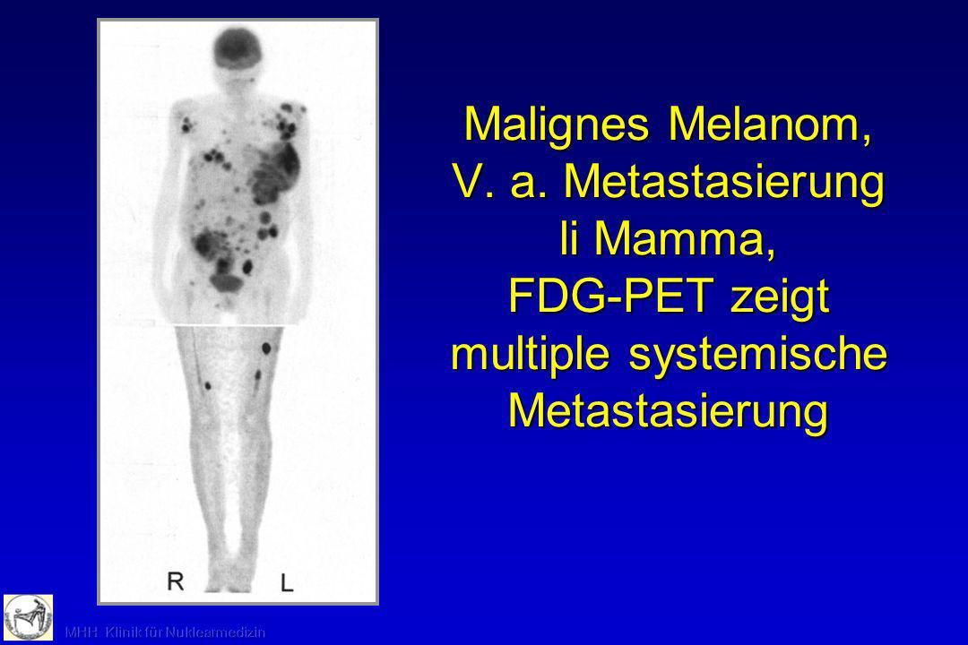 Malignes Melanom, V. a. Metastasierung li Mamma, FDG-PET zeigt multiple systemische Metastasierung